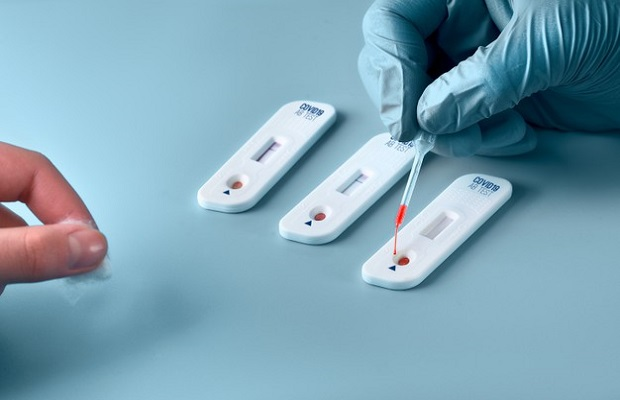 Test Covid-19 loại Real Time PCR với kết quả âm tính trong vòng 3 – 5 ngày trước giờ khởi hành